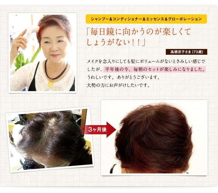 シャンプー&コンディショナー&エッセンス&グローポレーション「毎日鏡に向かうのが楽しくてしょうがない!!」高橋京子さま(73歳)メイクを念入りにしても髪にボリュームがないとさみしい感じでしたが、半年後の今、毎朝のセットが楽しみになりました。うれしいです。ありがとうございます。大勢の方にお声がけしたいです。