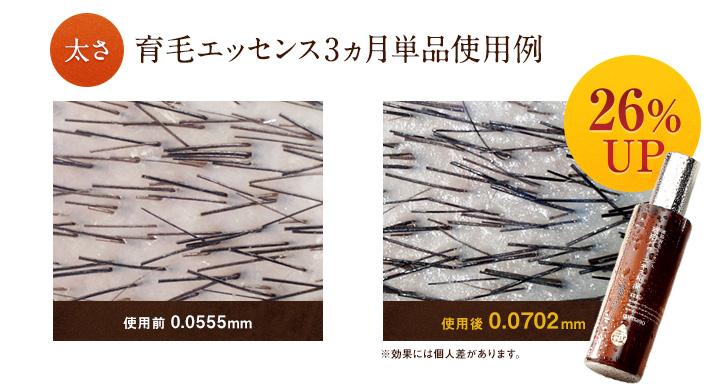 太さ育毛エッセンス3ヵ月単品使用例26%UP